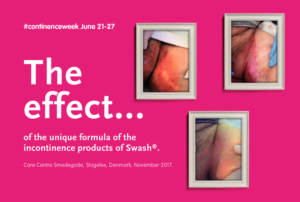 Perineal Skin Improvement in 3 days with Swash Perineum for IAD prevention